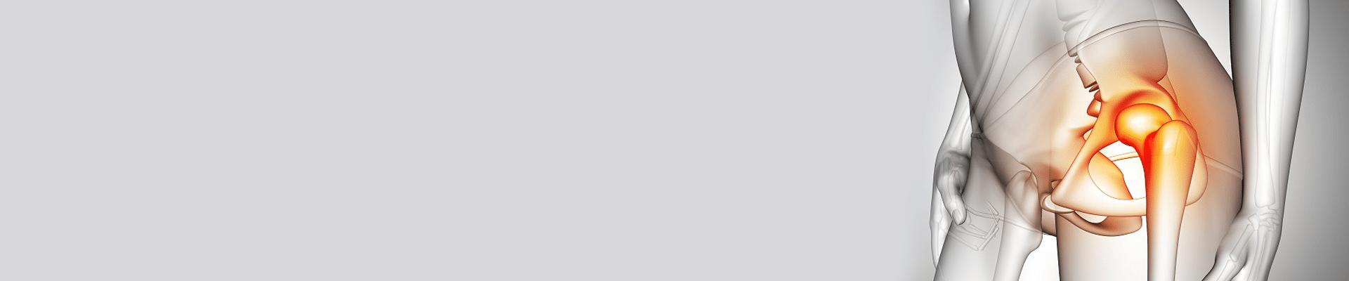 [:fr]Prothèse totale de la hanche Nabeul : prix PTH pas cher[:ar]التغيير الكلي للورك في نابل : بأسعر رخيصة :[:]